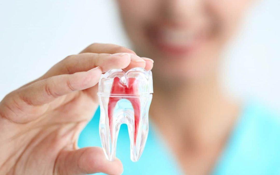Recomendaciones después de una endodoncia