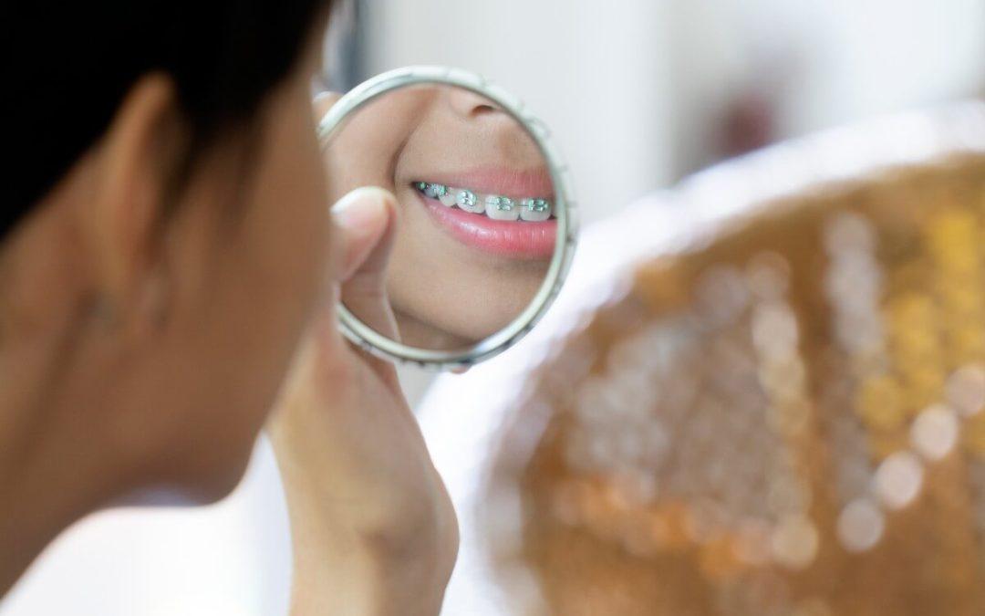 Ortodoncia para adulto, ¿hasta qué edad puedo llevarla?