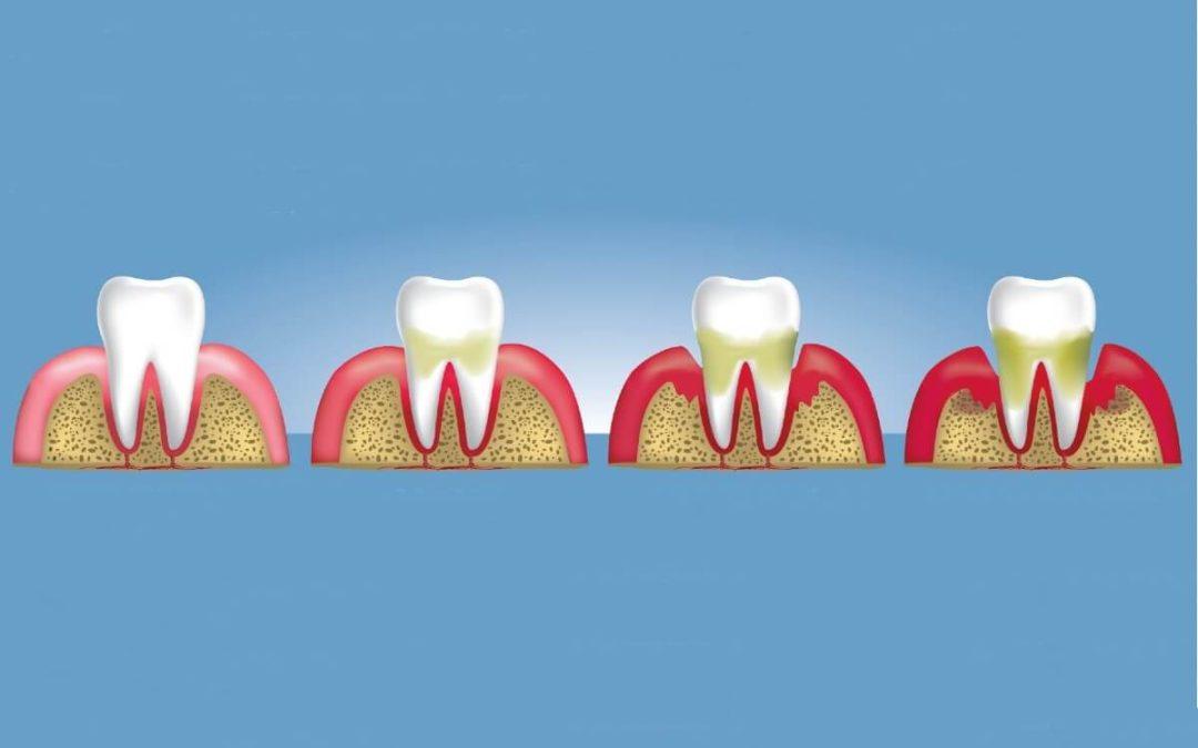 ¿Es hereditaria la piorrea y la enfermedad periodontal?