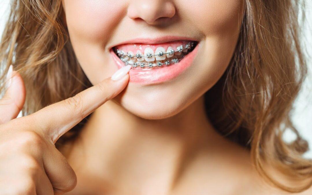 Anomalías dentales más comunes que requieren ortodoncia