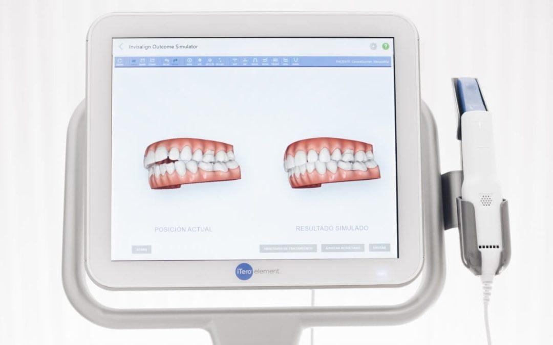 Cómo ver tu nueva sonrisa antes de empezar el tratamiento de ortodoncia