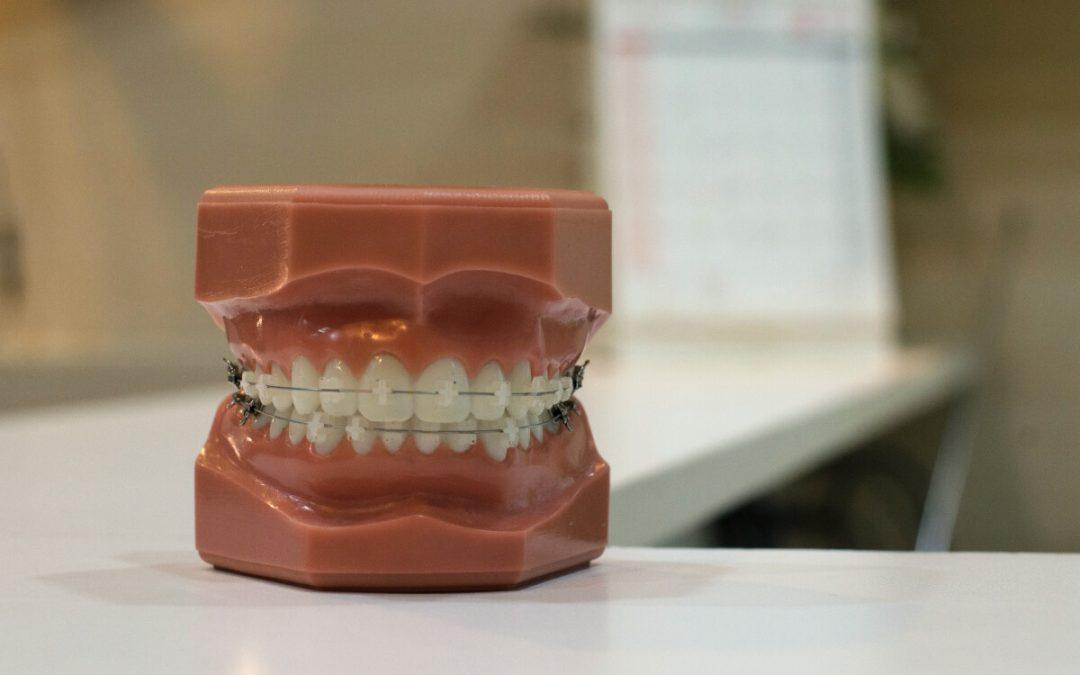 Ortodoncia de brackets de baja fricción, ¿qué es?