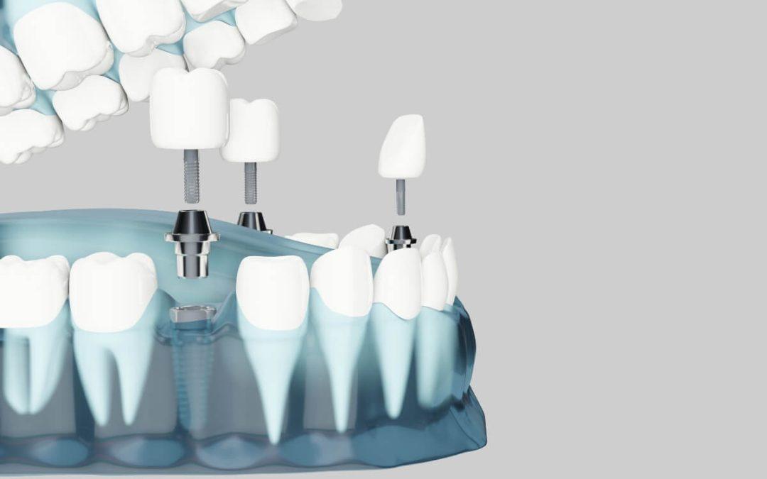 Osteointegración en implantes dentales: ¿en qué consiste?