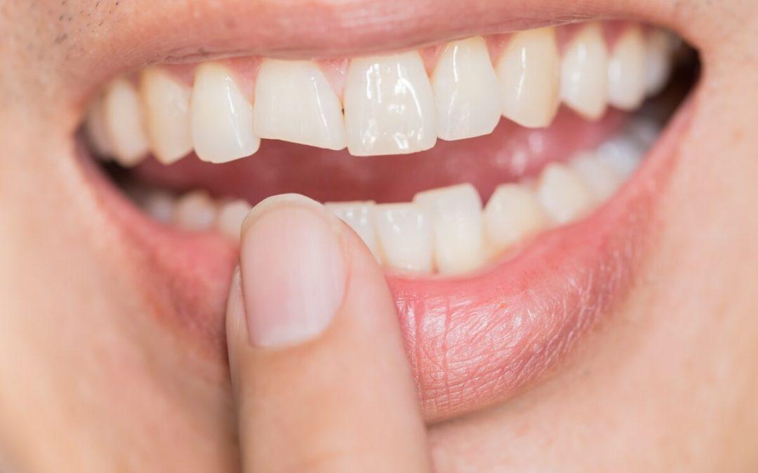 Traumatismos dentales más comunes